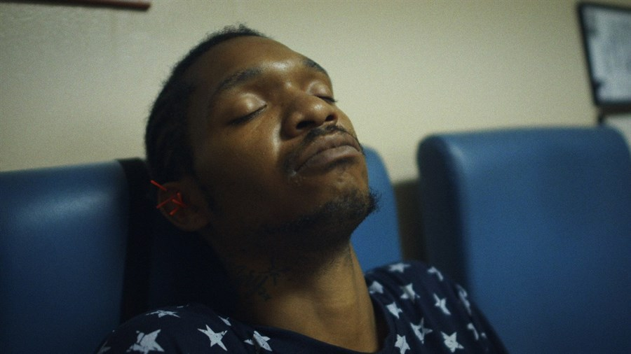 A Black man relaxing with acupuncture needles in his ear.